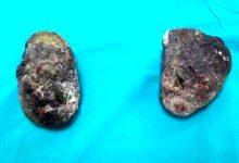 Midesinden yarım kilogram taş çıkarıldı
